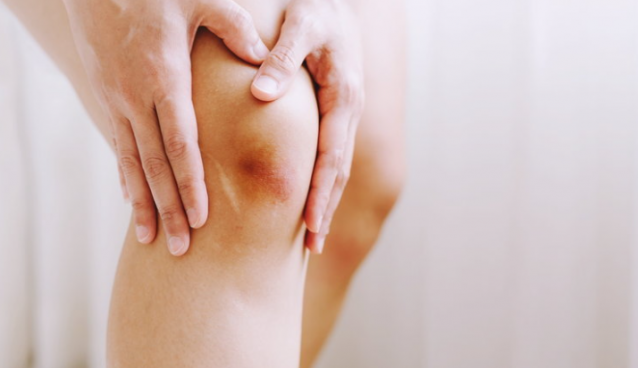 5 ways to heal bruises to heal quickly